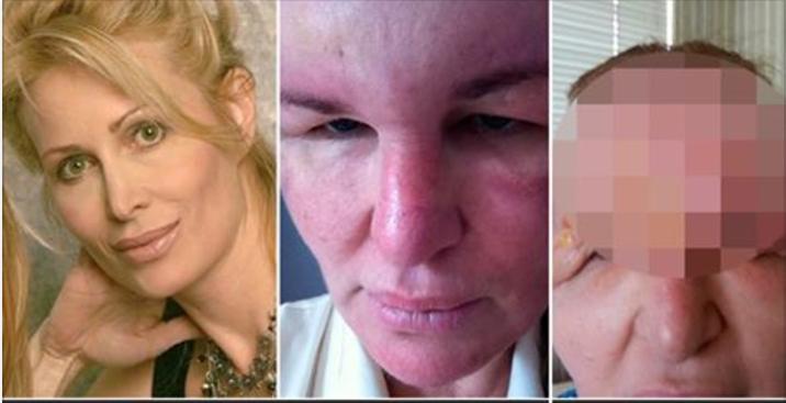 Ужасная ошибка: как женщина пострадала от неправильного укола ботокса